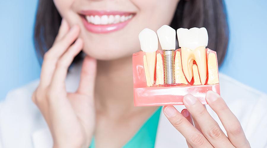 インプラントか差し歯か
